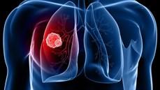 Hướng dẫn điều trị hóa chất ung thư phổi