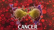 Viêm mạn tính và ung thư