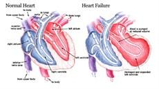 Giá trị xét nghiệm NT-proBNP trong chẩn đoán, theo dõi, tiên lượng và sàng lọc suy tim