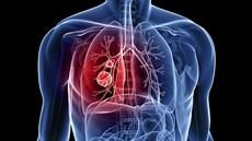 Phẫu thuật nội soi cắt thùy phổi và vét hạch điều trị ung thư phổi không tế bào nhỏ