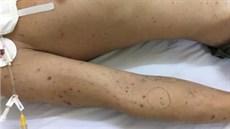 Cấp cứu điều trị thành công ca bệnh nặng do nhiễm khuẩn màng não cầu - BV108