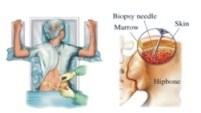 Kỹ thuật sinh thiết tủy xương