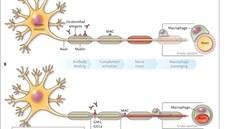 Cấp cứu điều trị thành công bệnh nhi bị hội chứng Guillain – Barré - BV108