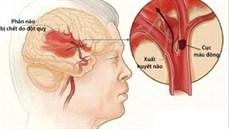 Đột quỵ não: Cần xử trí sớm ...