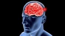 Phình mạch não – Kẻ giết ...