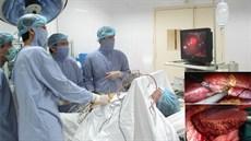 Kỹ thuật cắt gan nội soi điều trị ung thư biểu mô tế bào gan