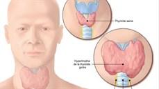 Phẫu thuật nội soi điều trị bướu giáp đơn thuần