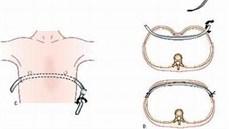 Điều trị bệnh lõm ngực bẩm sinh theo phương pháp Nuss