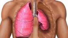 Phẫu thuật nội soi lồng ngực điều trị tràn khí màng phổi tự phát nguyên phát