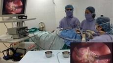 Phẫu thuật cắt amidan bằng Coblator II
