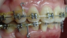 Ứng dụng Miniimplant trong ...