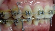 Ứng dụng Miniimplant trong chỉnh nha can thiệp điều trị sai khớp cắn Angle I tiểu loại 1 và 2