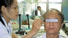Laser châm điều trị liệt dây thần kinh VII ngoại biên