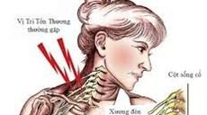 Phục hồi chức năng cho bệnh nhân sau mổ chuyển rễ C7 từ bên lành trong điều trị nhổ, đứt hoàn toàn các rễ thần kinh đám rối cánh tay