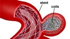 Kỹ thuật can thiệp nút phồng động mạch não vỡ bằng coils
