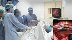 Phẫu thuật cắt gan
