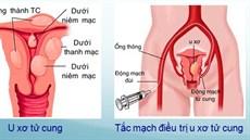 Điều trị u xơ tử cung không phải phẫu thuật