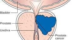 Xét nghiệm PSA (Prostatic Specific Antigen)