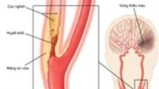 Đặt stent động mạch cảnh ...