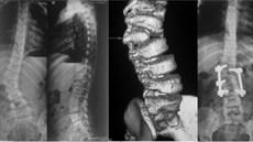 Phẫu thuật bệnh nhân vẹo cột sống bẩm sinh