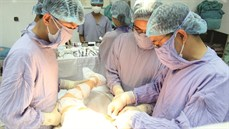 Phẫu thuật thay hai khớp háng cho bệnh nhân hoại tử vô khuẩn chỏm xương đùi