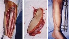 Ứng dụng kỹ thuật vi phẫu điều trị mất đoạn xương lớn và khuyết hổng phần mềm rộng