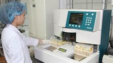 Xét nghiệm ure trong máu và nước tiểu