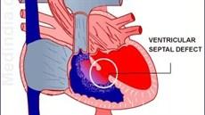 Sửa chữa các dị tật tim bẩm sinh