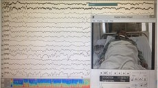Điện não đồ video