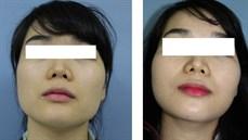 Phẫu thuật điều chỉnh đường nét khuôn mặt: Tạo hình góc hàm