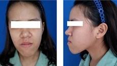 Ứng dụng một số kỹ thuật cắt chỉnh xương hàm (orthognathic surgery) trong điều trị lệch lạc khớp cắn