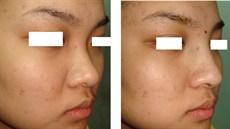 Phẫu thuật nâng sống mũi