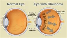 Những phương pháp điều trị bệnh glôcôm