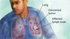 Giá trị của một số dấu ấn sinh học trong chẩn đoán ung thư phổi đang được làm tại Bệnh viện TƯQĐ 108