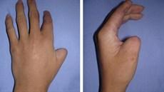Phẫu thuật chuyển ngón chân tái tạo ngón tay cái