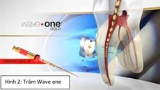 Điều trị tủy răng dễ dàng với một trâm sửa soạn duy nhất